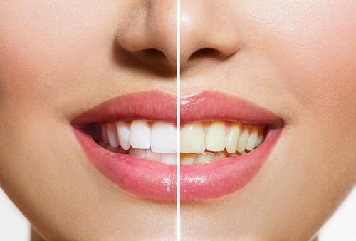Clareadores Dentais Terao Prescricao Para Venda Determina Anvisa